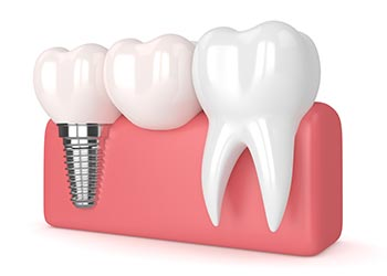 dental-implants-in-Liverpool